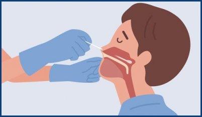 Test Covid nasopharyngés et sanguins